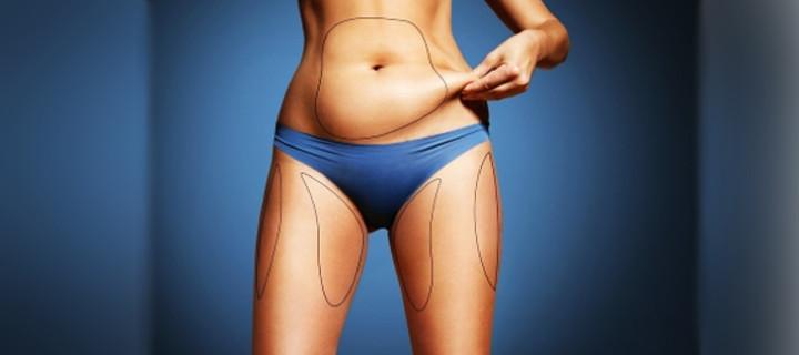 Как убрать бока, живот и галифе: можно ли похудеть локально?