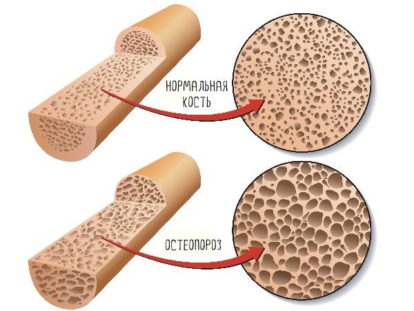 Белок и остеопороз