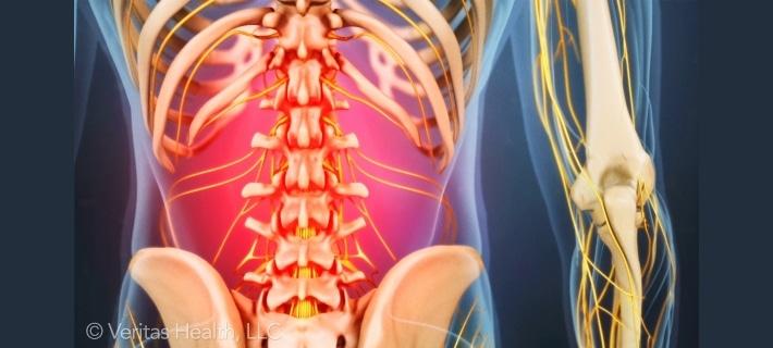 Как тренироваться, если болит спина?